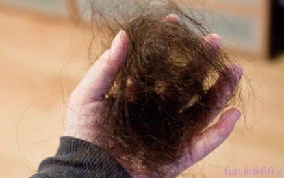 ریزش موی ناشی از کمبود آهن بدن