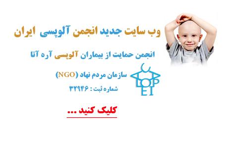 انجمن حمایت از بیماران آلوپسی آره آتا
