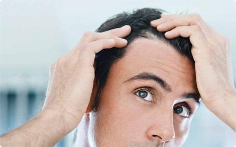 آشنایی با کاشت مو در زنان و مردان