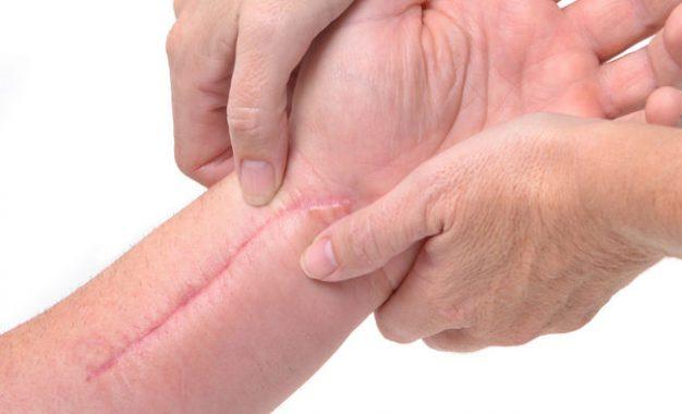 التیام زخم بدون به جا ماندن اثر آن