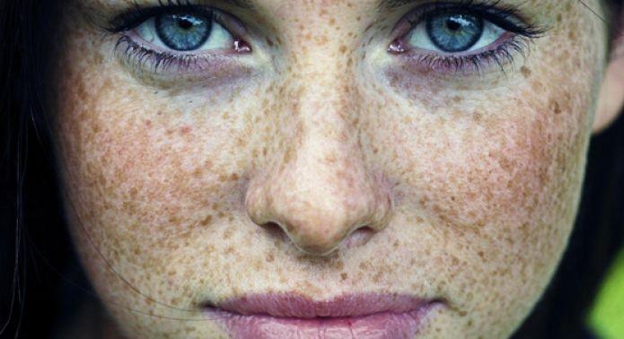 روش های برای رفع کک و مک روی پوست