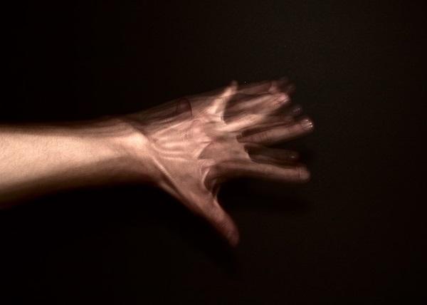 20 بیماری نادر و عجیب در دنیا