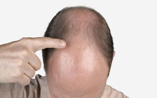 10 باور غلط درباره کاشت مو