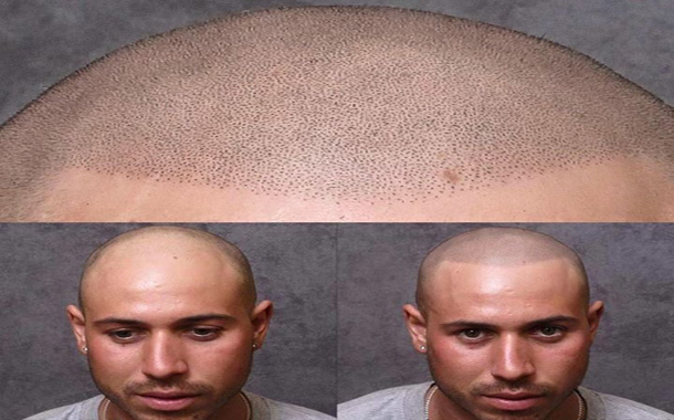 باورها و تصورات غلط درباره کاشت مو