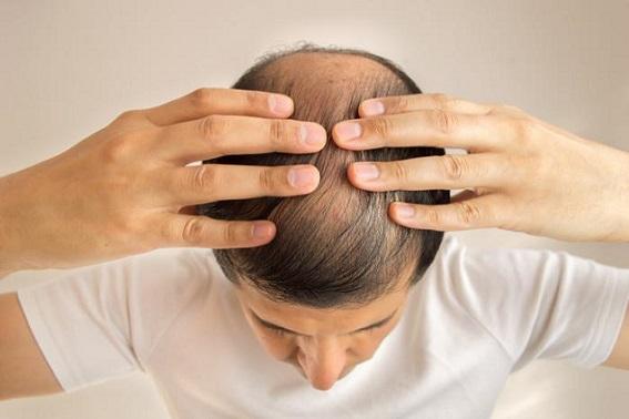 جلوگیری از ریزش مو,اهمیت ویتامین ها برای رشد مو
