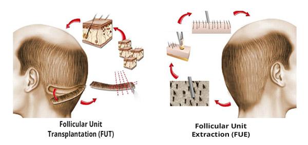 مقایسه روش کاشت موFUE در برابر FUT