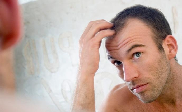 نحوه درمان ریزش مو ارثی(مهم ترین علت ریزش مو)