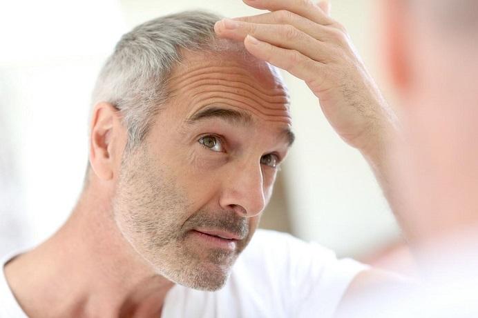 هر آنچه درباره کاشت مو روش های کاشت مو باید بدانید