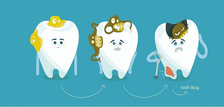 علایم پوسیدگی دندان و عوامل اصلی پوسیدگی دندان