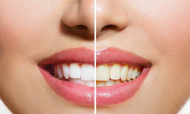 پودرهای سفید کننده دندان چه بلایی بر سر دندان می آورد
