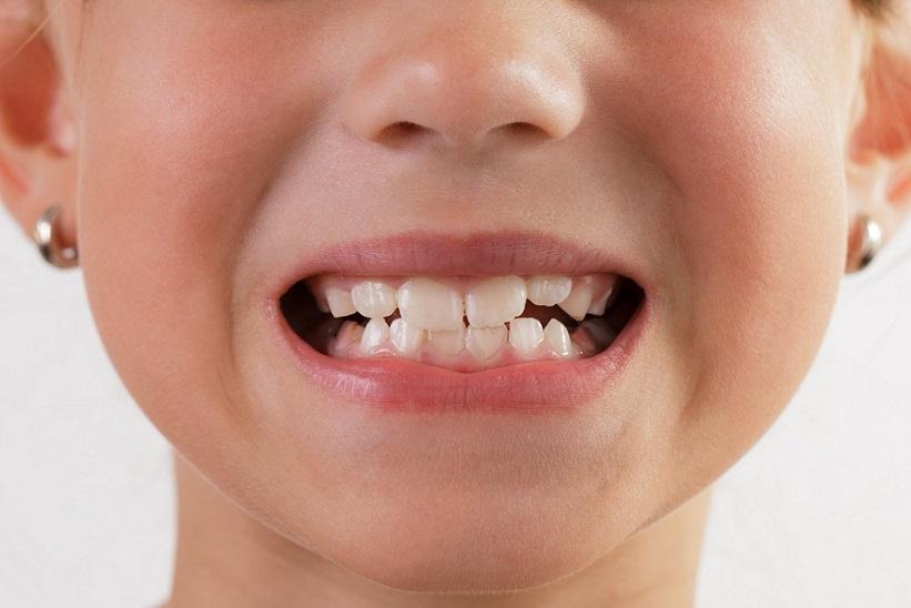 رویش دندانهای دائمی در پشت دندانهای شیری و ایجاد بی نظمی در رشد