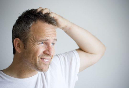 حساسیت و عوارض ماینوکسیدیل