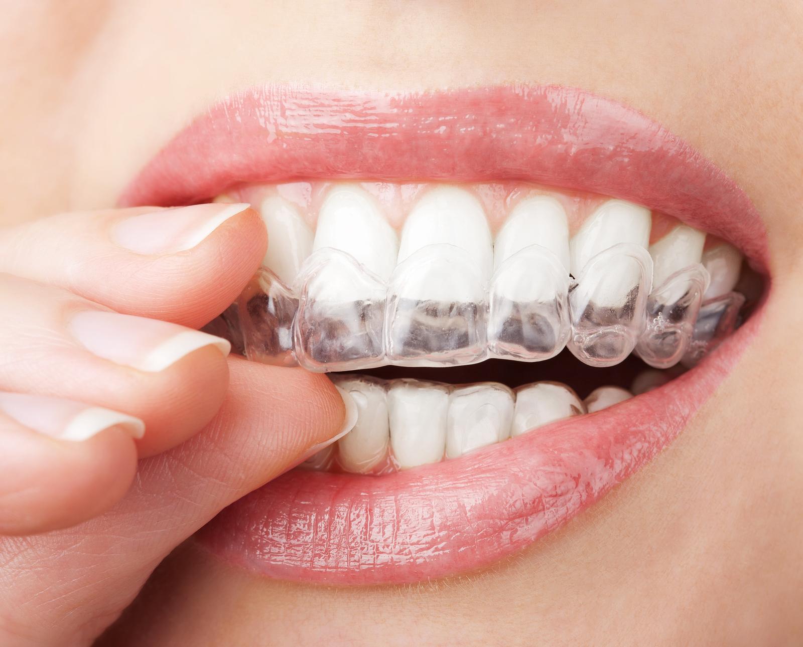 دندان قروچه