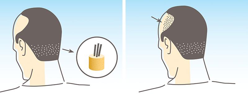 انواع روش های رایج کاشت مو