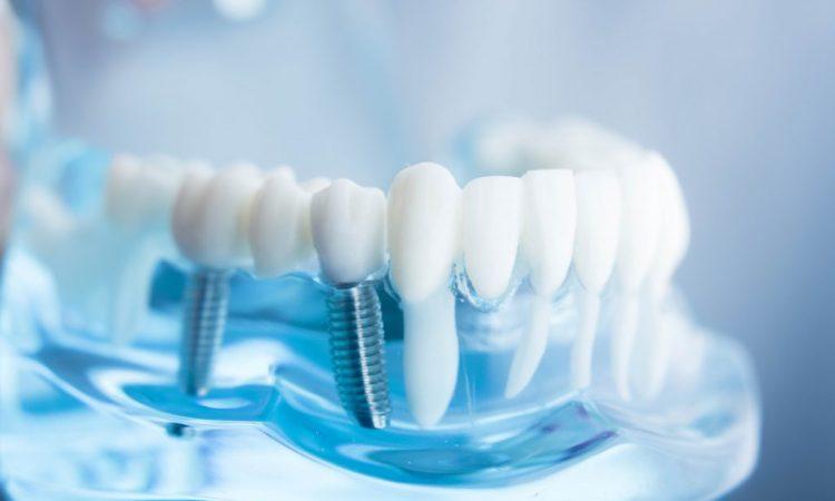 عمر و دوام ایمپلنت دندان