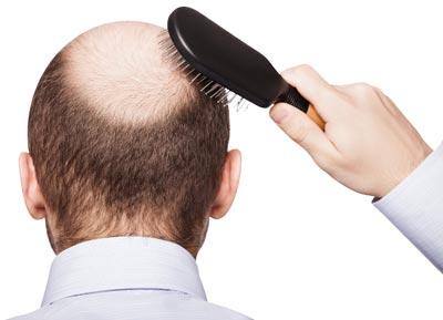 مراقبت های قبل از کاشت مو