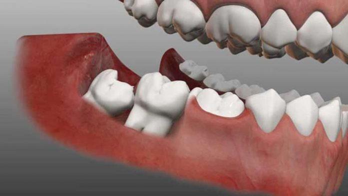 کشیدن دندان عقل بدون درد