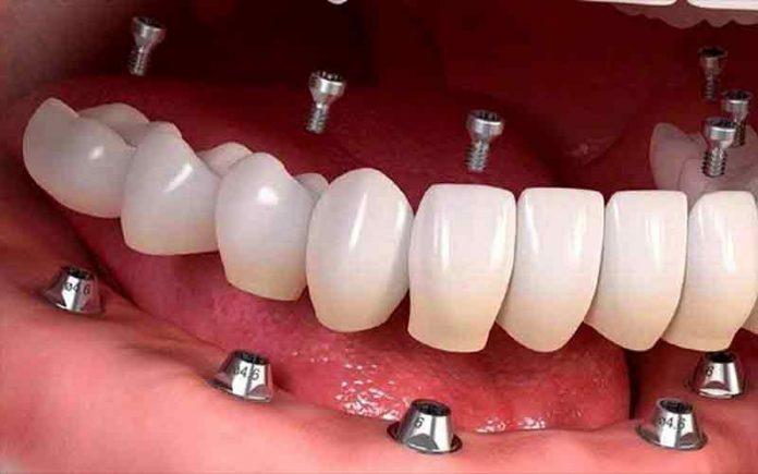 صفر تا صد ایمپلنت دندان